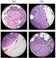 Google zeigt AR-Mikroskop für Krebserkennung