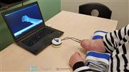 Erste erfolgreiche Implantation einer neuartigen Handprothese